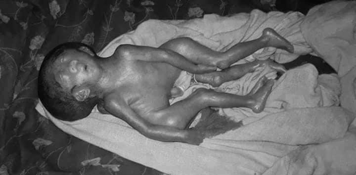 टिकापुर अस्पतालमा जन्मिएको अनौठो शिशुुुुको मृत्यु